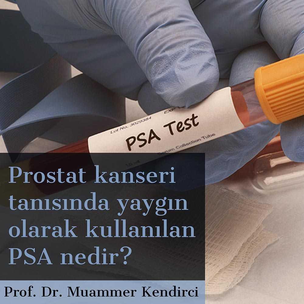 PSA Nedr? - Prof. Dr. Muammer Kendirci